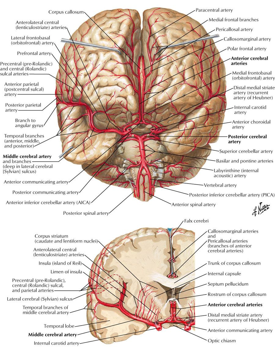 anterior cerebral artery - Google Search (JQK\'s bleed). He clotted ...