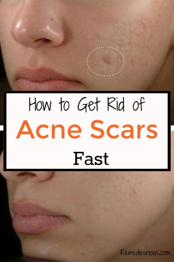 How To Get Rid Of Small Acne Scars On Face