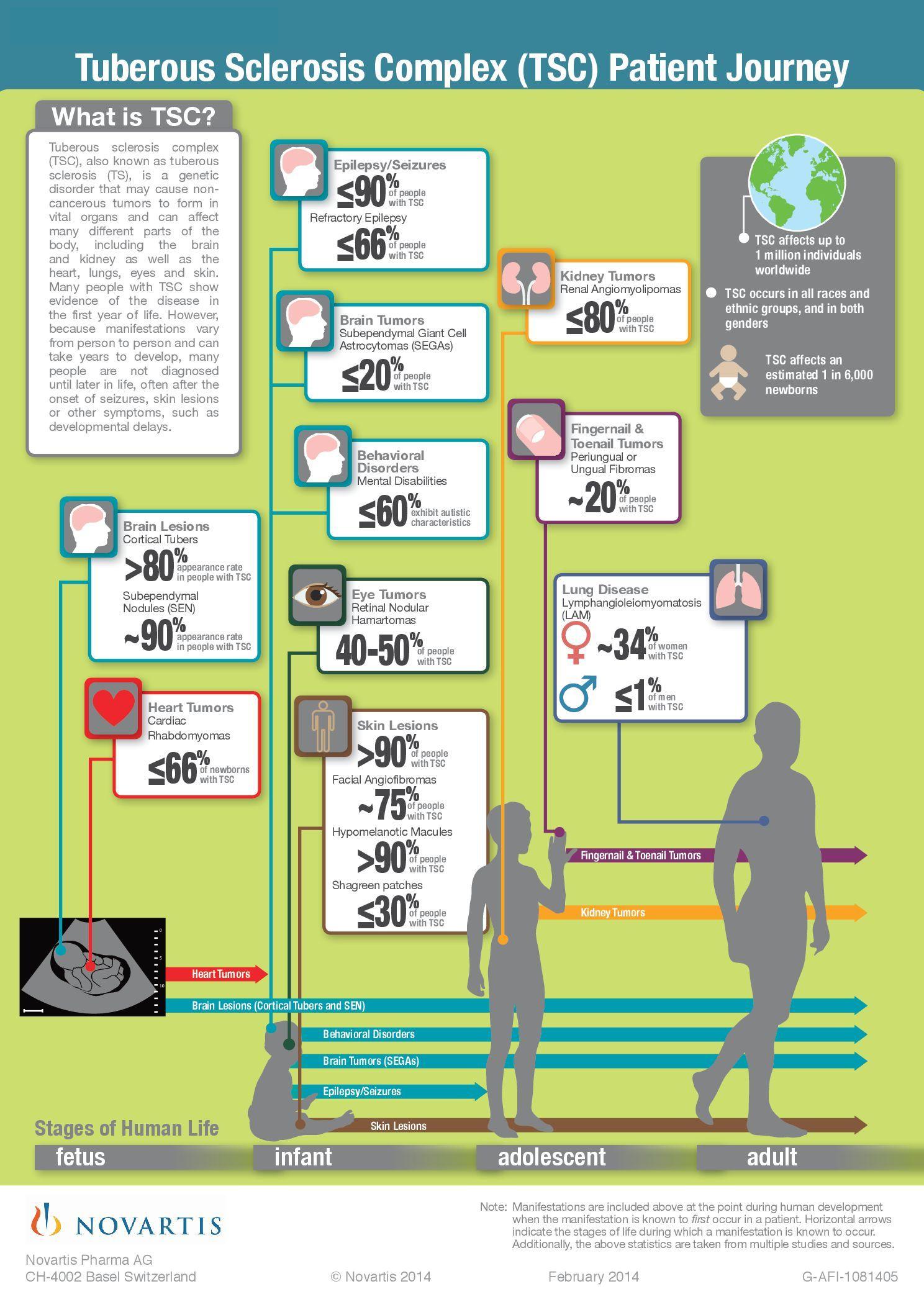 Tuberous Sclerosis Complex Tsc Patient Journey