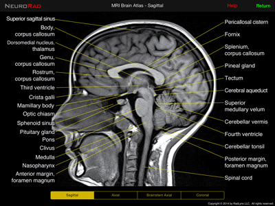 normal mri top brain - Google Search | ANATOMY | Pinterest | Radiology