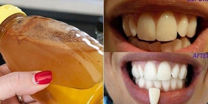 Muitos Metodos Para Deixar Os Dentes Brancos Alguns Prometem