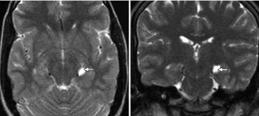 Choroid Fissure Cyst Radiology Radiology