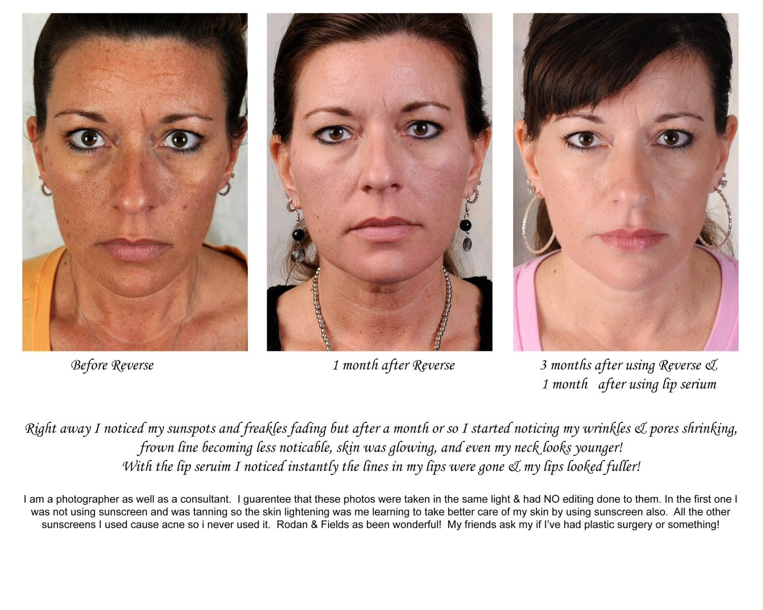 before at 30 days at 90 days first she stopped sun bathing and tanning beds and then she used. Black Bedroom Furniture Sets. Home Design Ideas