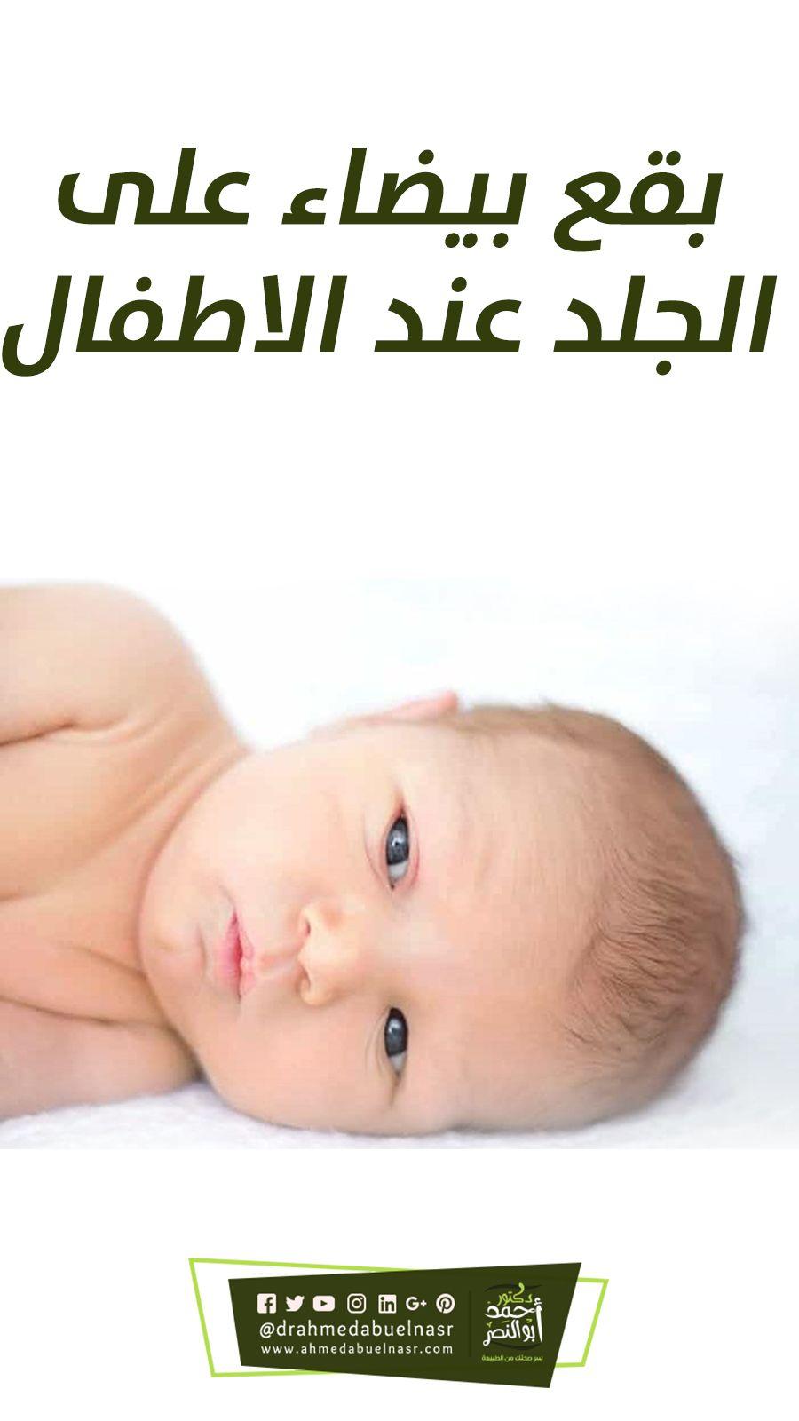 بقع بيضاء على الجلد عند الاطفال Baby Face Face Baby