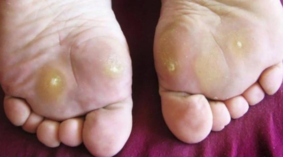 exerciții împotriva venelor varicoase pe picioarele videoclipului codul varicos mkb 10