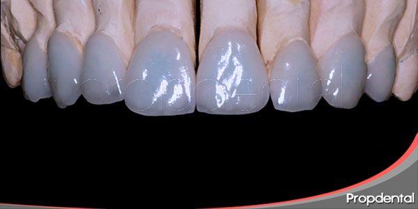 Estética Dental Expertos En Estética Dental Barcelona Y Madrid Estetica Dental Dental Estetica