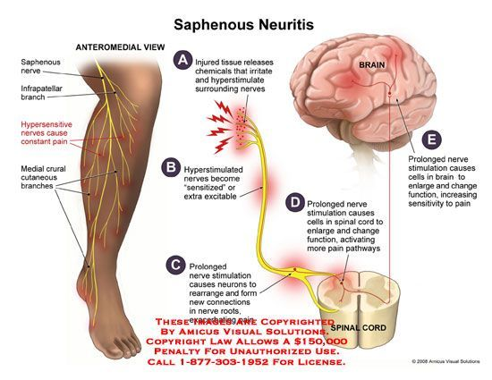Image result for saphenous nerve pain | Favorite Places & Spaces ...
