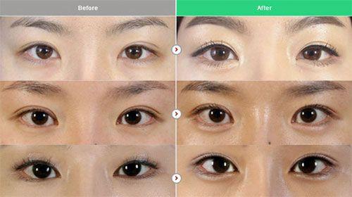 What Is Aegyo Sal Kpop Surgery What Is Aegyo Surgery Rose Skincare
