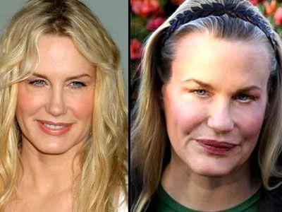 Plastic surgery fails celebrity tattoos