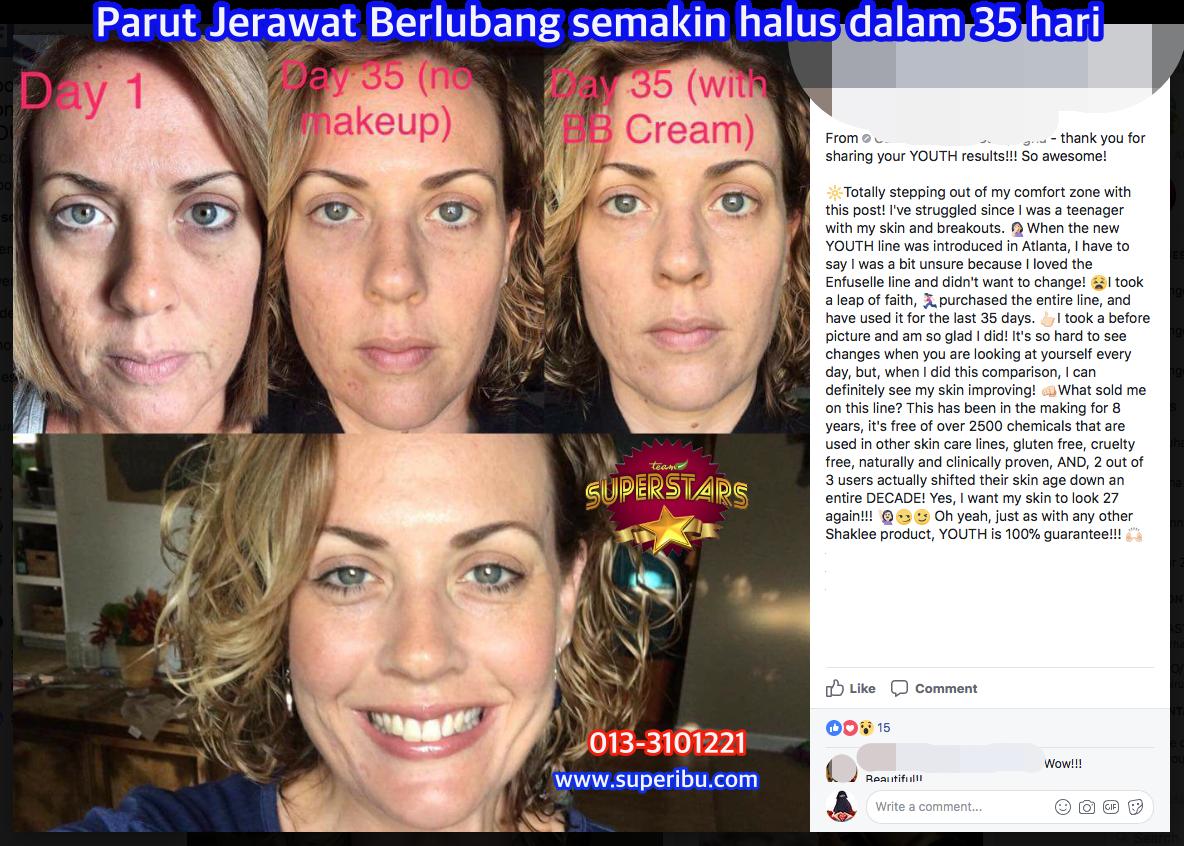 Berapa Lama Rises Detox Skincare Pada Kulit Berjerawat