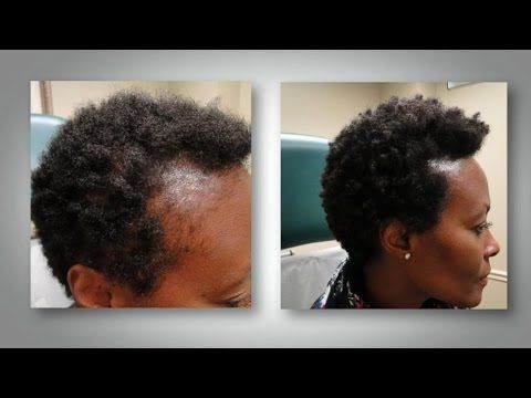 traitement naturelle de chutes des cheveux ll jusnovit youtube afro hair en 2019. Black Bedroom Furniture Sets. Home Design Ideas