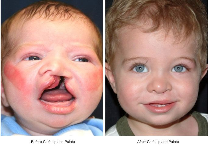 an in depth look at the cleft lip and plate facial defects Facial characteristics of normal vision is possible with early diagnosis and treatment cleft lip and cleft palate are birth defects that affect the.
