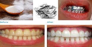 Branqueador De Dentes Caseiro Remedios Caseiros E Naturais