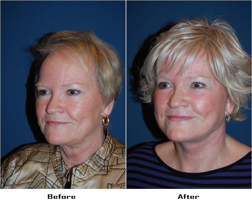 Procedures Performed: Eyelid: Lower Lid Blepharoplasty with