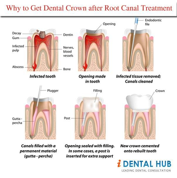 Why To Get Dental Crown After Root Canal Treatment Oralhealth