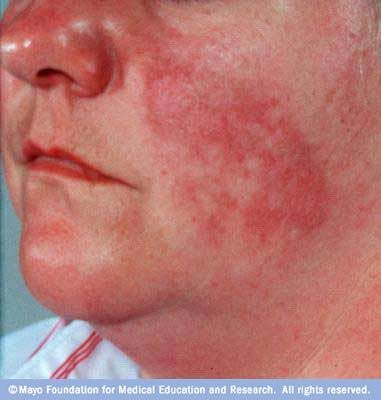 Lupus What Is It Signs And Symptoms Chronic Inflammatory