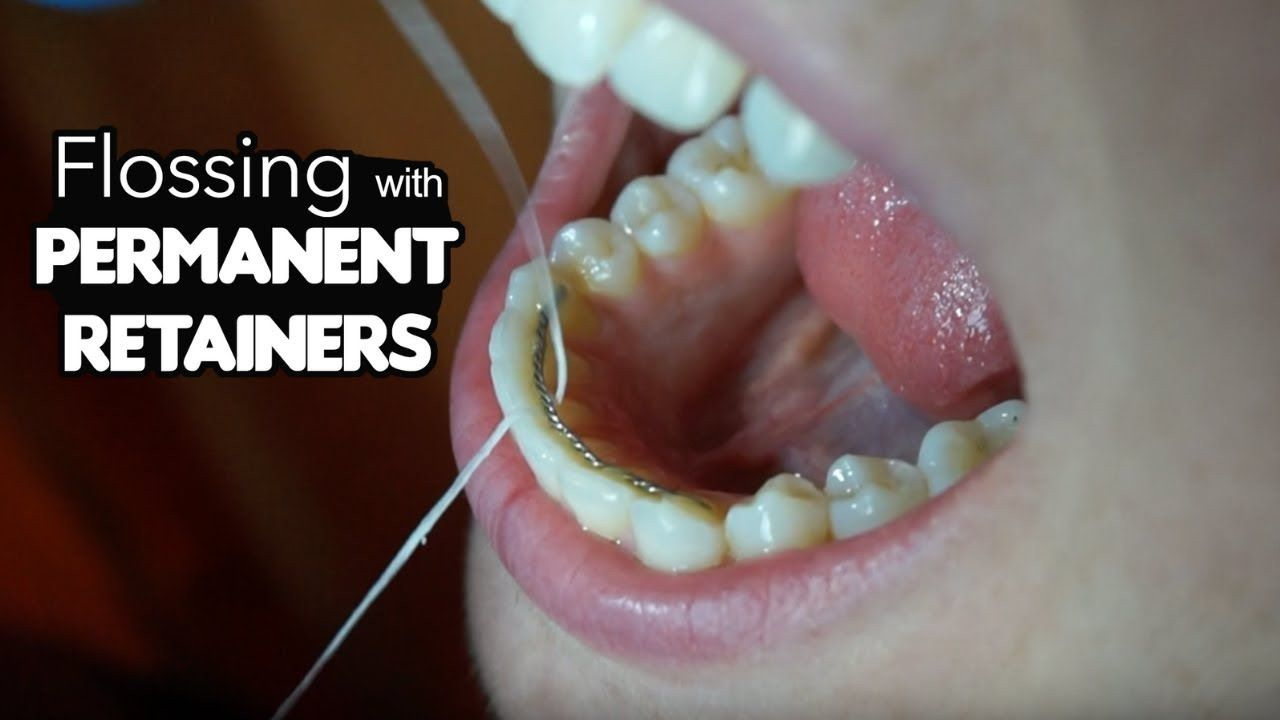 How To Floss With Permanent Retainer Flossing Tricks Youtube Permanent Retainer Flossing Retainer Teeth