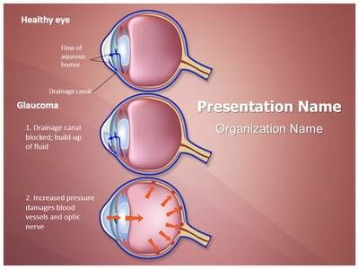 Check out our professionally designed and world class check out our professionally designed and world class ophthalmologist glaucoma stages ppt template toneelgroepblik Gallery