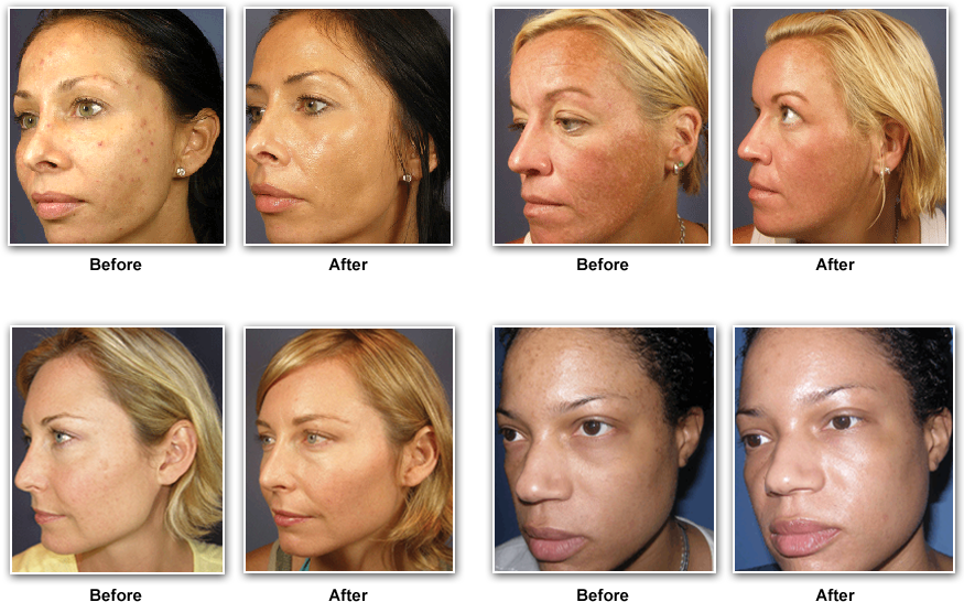 Bioelements Skin Care Bioelements Pinterest Facial