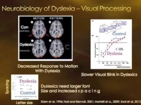 Understanding Dyslexia And How To Help Kids Who Have It >> Neurobiology of Learning Disorders - Dyslexia ADHD Dyscalculia Dysgraphia   ADHD, Asperger's ...