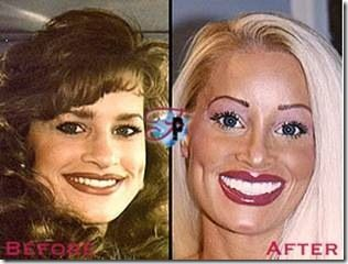 Girl With Most Plastic Surgery