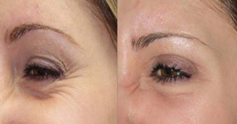 How To Get Rid Of Under Eye Wrinkles Under Eye Wrinkles Eye Wrinkle Homemade Wrinkle Cream