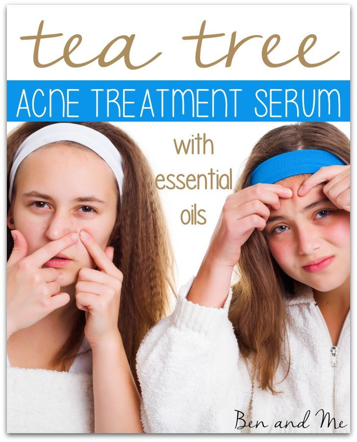 Having a teenage son, so I know a little bit about acne. One of the everyday uses for tea tree oil in our home is as an acne treatment.