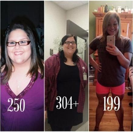 Best Fitness Body Inspiration Before And After Success Story 35+ Ideas #fitness