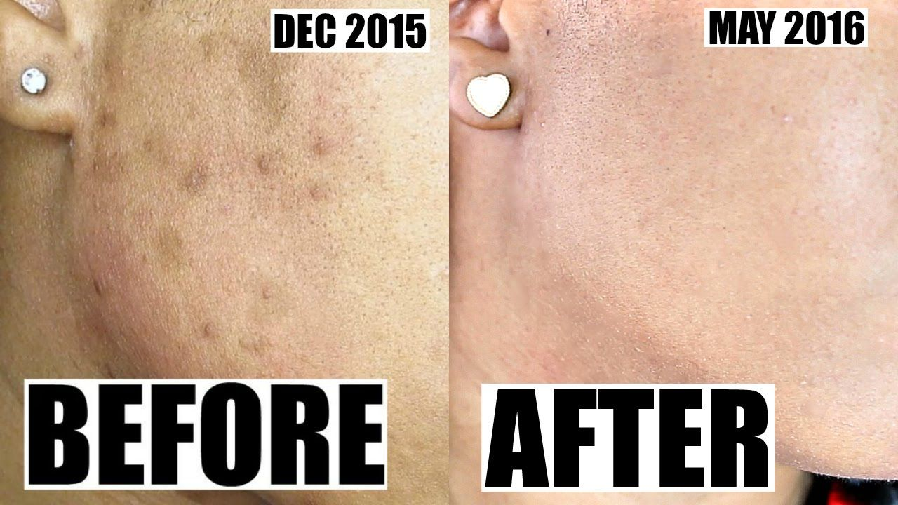 6 MONTH UPDATE + GIVEAWAY! How To Get Rid of Acne Scars Permanently | Ba...