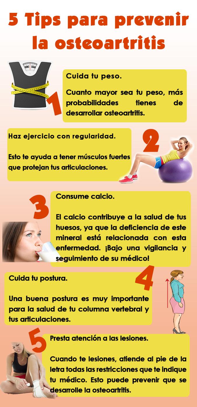 prevencion de osteoartritis