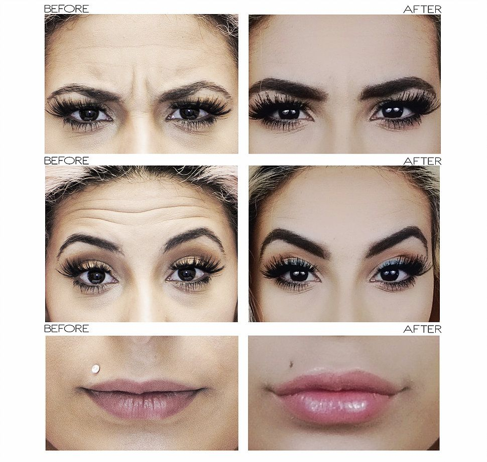 FIRST TIMER: Botox, Tear Troughs & Lip Fillers | Cosmetic