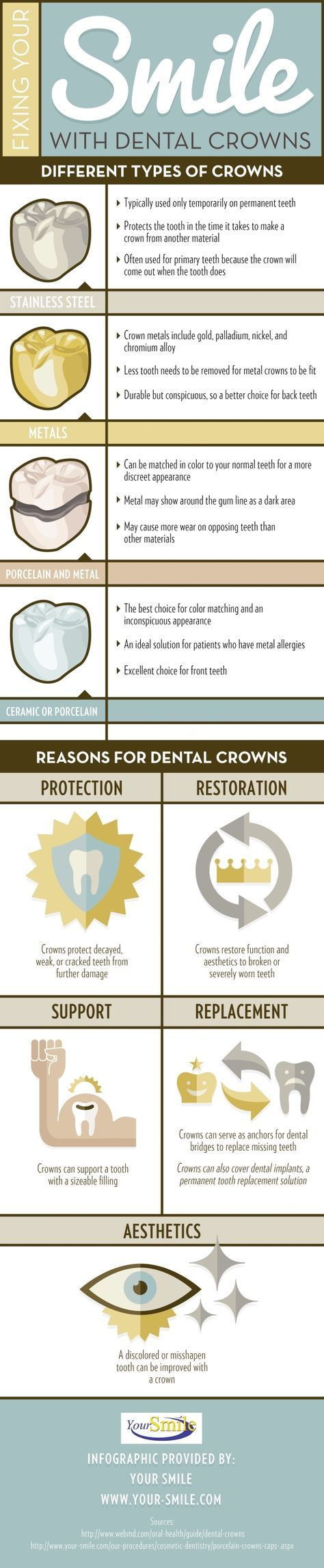 Permanent Gold Teeth Implants : permanent, teeth, implants, Patients, Dental, Crowns?, These, Devices, Protect,, Restore,, Support,, Replace,, Improve, Appearance, Dental,, Crowns,, Dentistry