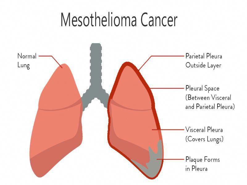 mesothelioma stage 3 life expectancy #asbestos
