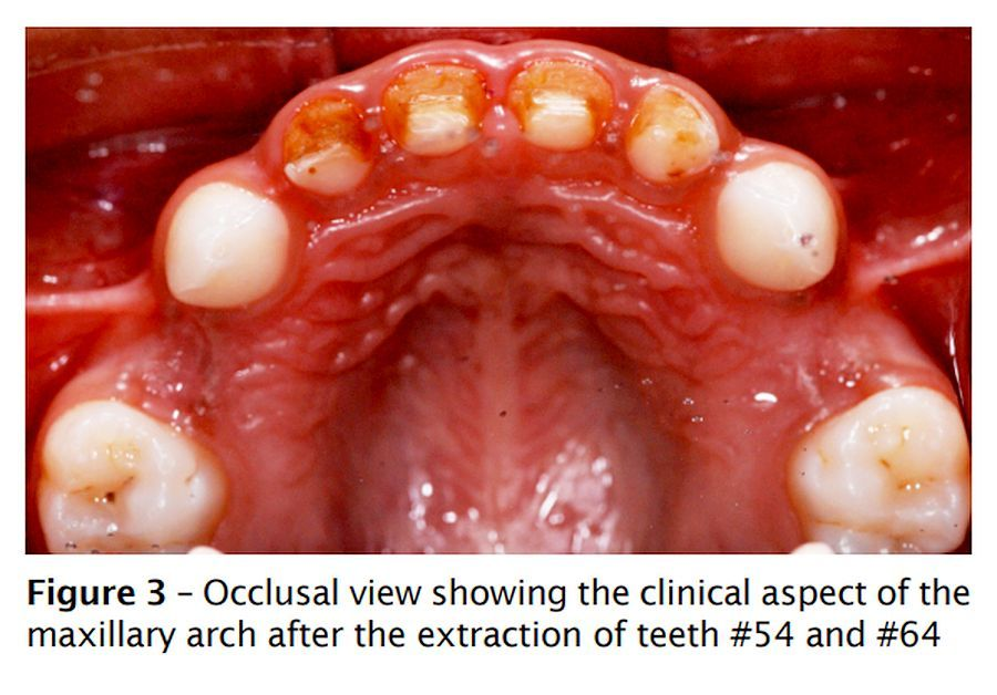 Oral-rehabilitation