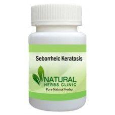 seborrheic keratosis  herbal treatment herbalism