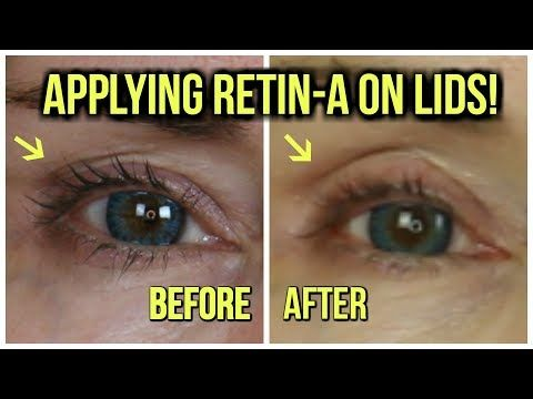 RETIN-A FOR HOODED EYES I 10 MONTH RETIN-A RESULTS I ...