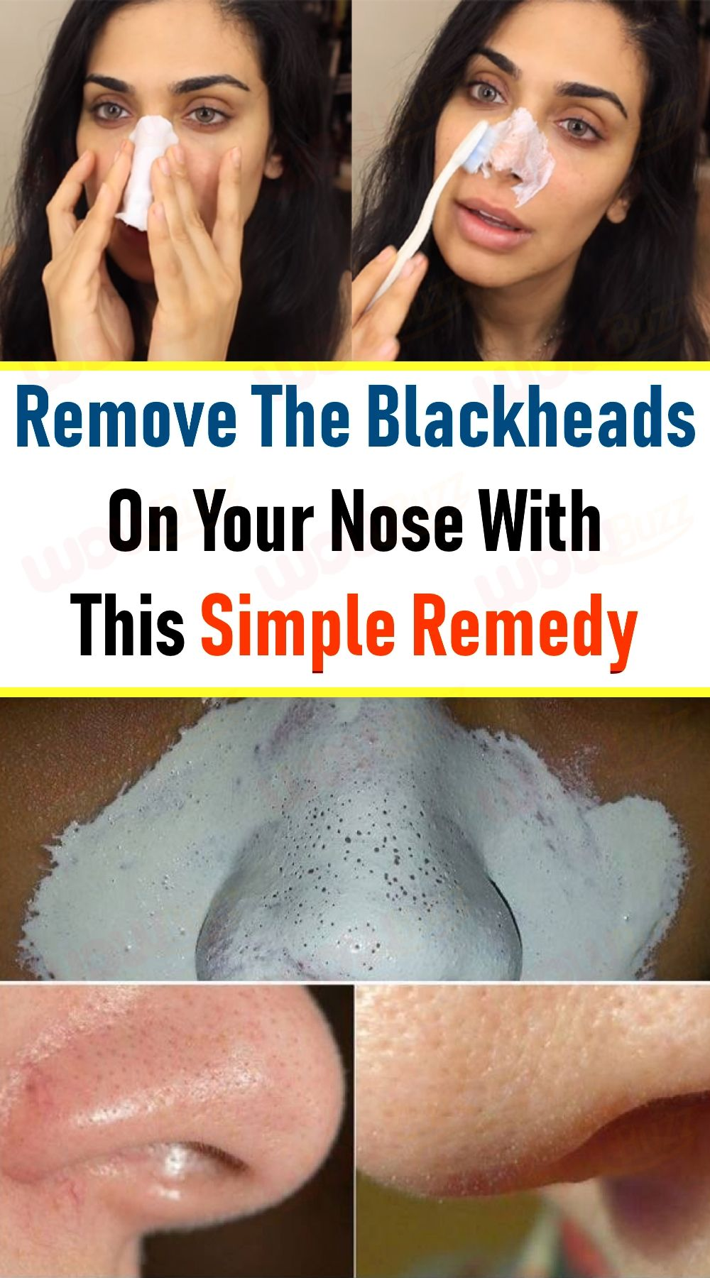 Pin on Acne remover