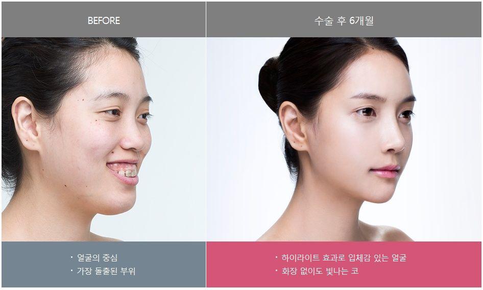 #안면윤곽 #양악수술 #쌍꺼풀수술 #성형수술 #양악전후 #렛미인병원 #렛미인박동희 #렛미인레전드 #돌출입수술 #mandible #contouring #gangnam #seoul #surgeon #cheekbone #plasticsurgery #surgery #eyes #nose #lips #beauty
