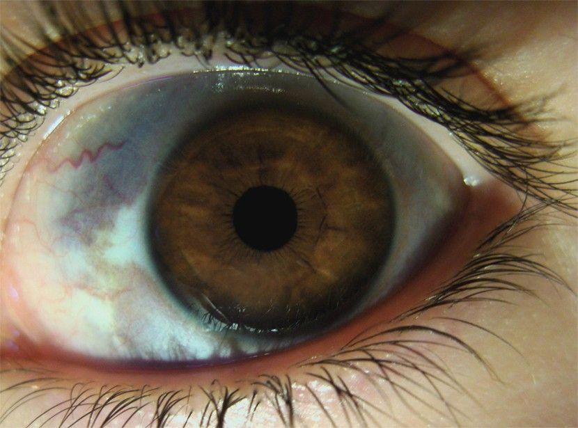 nevus ocular sintomas de diabetes