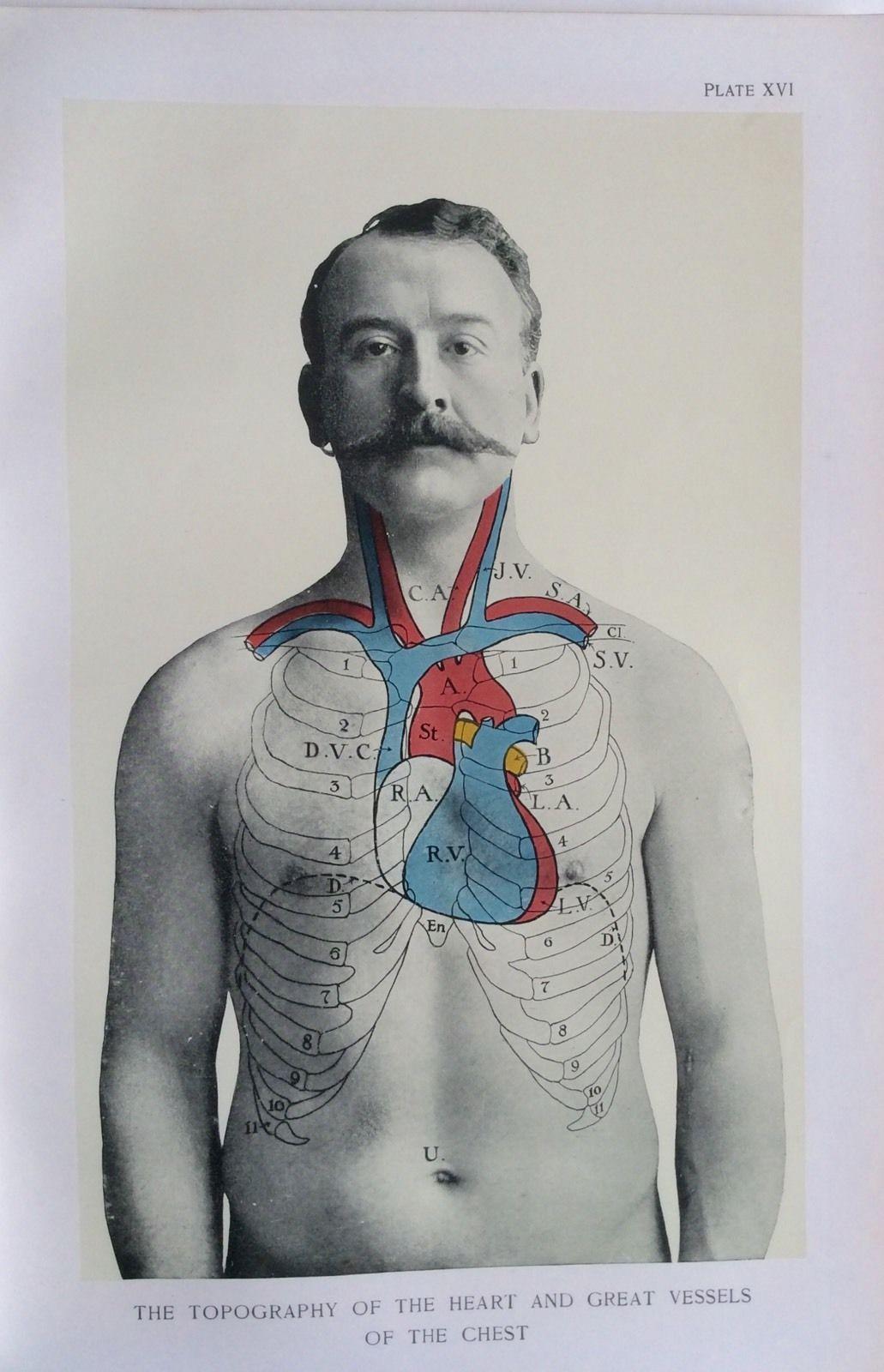 Antique 1900s Medical Diagram Scientific Print Human Anatomy Heart ...