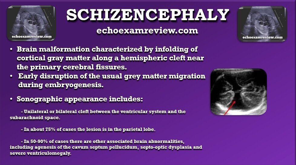 Schizencephaly in 2020 Workbook design, Retroverted