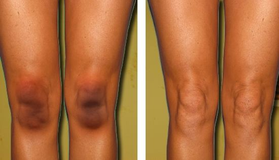 How to Get Rid of Black Knees and Elbows #skincare | Beauty