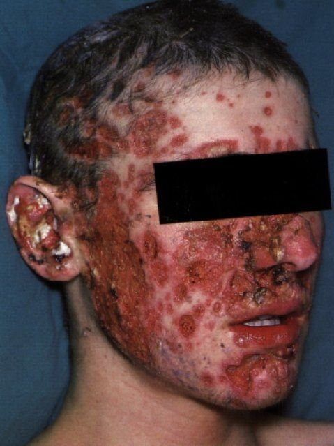 acne a very common skin disease Acneorg - the largest online acne community get the latest information on acne and acne treatments, expert advice & acne product reviews to help you get completely clear skin.