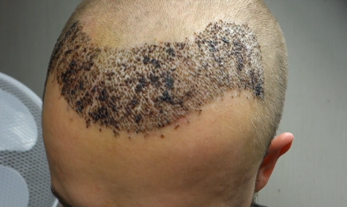 Faster Hair Growth After Hair Transplant Surgery