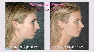 Health and Medical Science: Rhinoplasty Surgery and It's ...