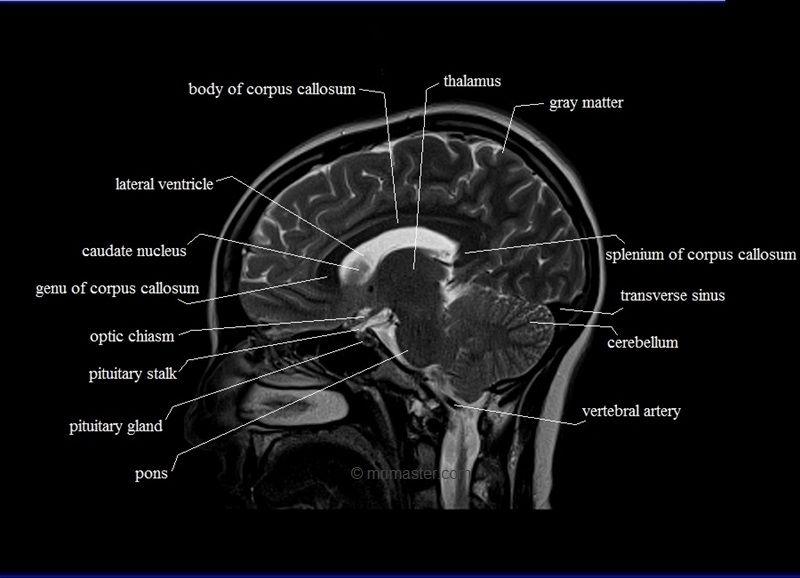 mri sagittal cross sectional anatomy of brain image 10 | Radiology ...