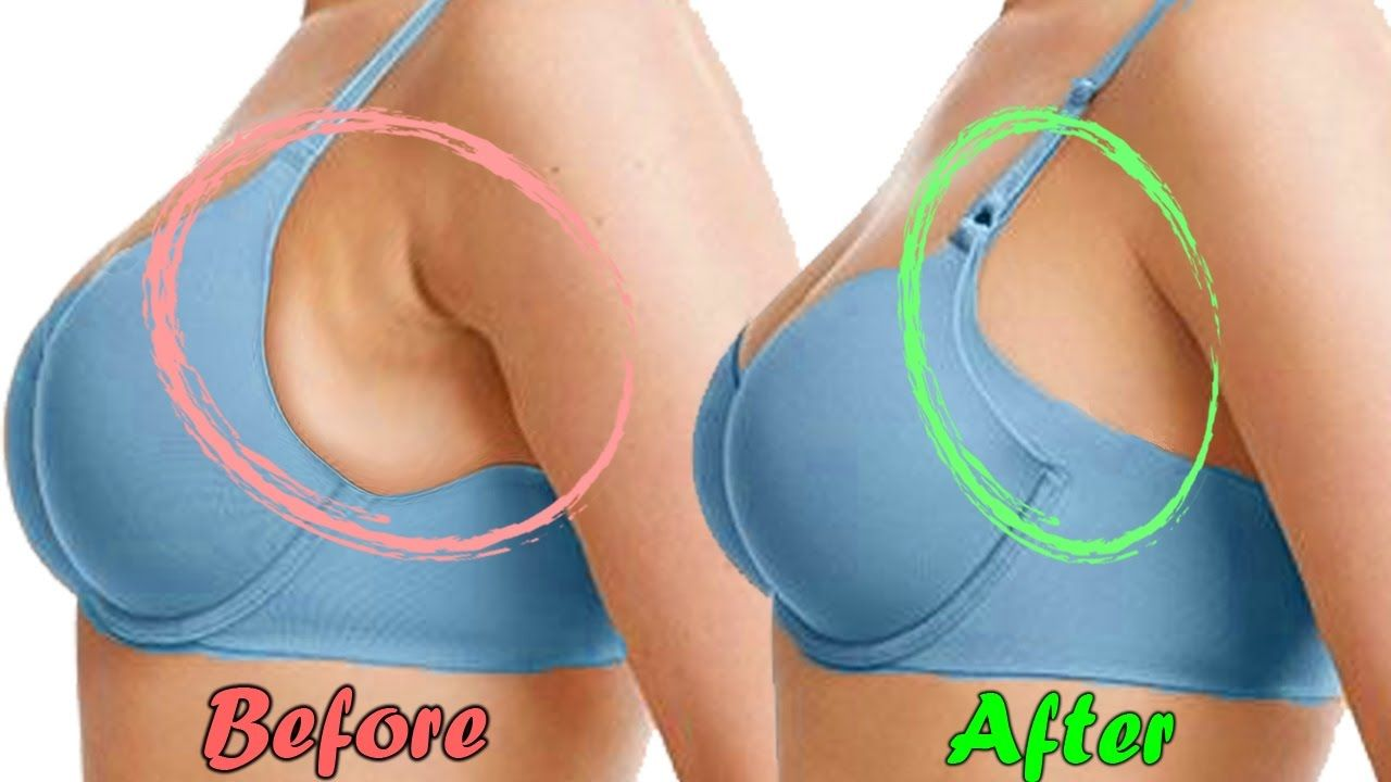 61b7c1c448cfa2f6ddeb2e2a653d9378 - How To Get Rid Of Fat On Side Of Breast