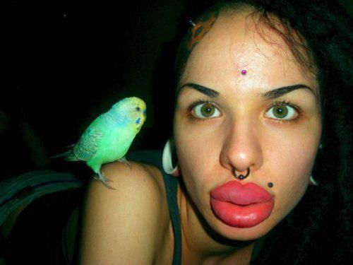 Something Big lips plastic surgery are