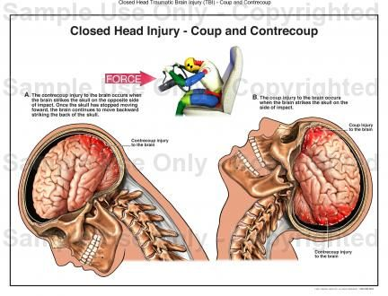 Car Accidents & Brain Injury https://www.hoffmannpersonalinjury.com  Car Accidents result in Traumatic Brain Injury when the head hits the wheel, dashboard, windshield, or door.  The type of brain injury and affect on the central nervous system dependent upon the extent of trauma and place of impact upon the head (front, side, rear of skull).  The Hoffmann Law Firm, L.L.C. specialized in head injury resulting from Car Accident Trauma.