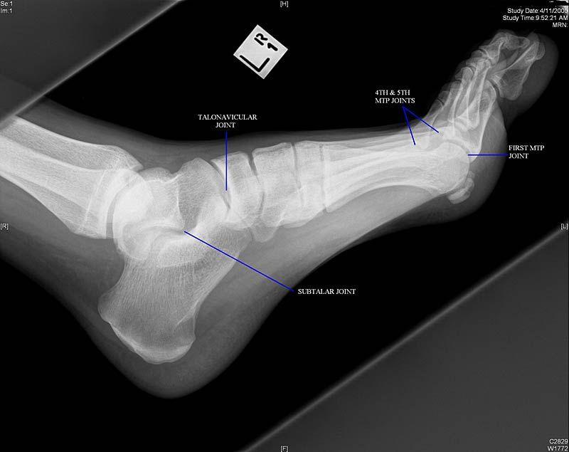 Foot Joints Radiologymasterclass Xrays Pinterest